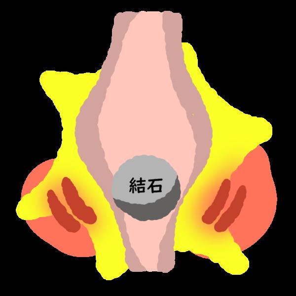 尿路結石 尿管結石